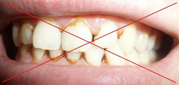 Эфирное масло лимона для отбеливания зубов отзывы
