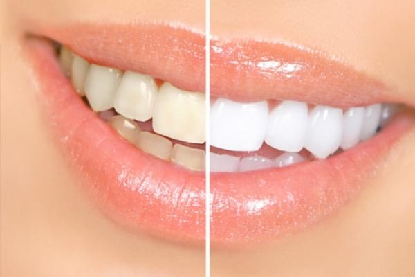Отбеливание зубов перекисью водорода содой и лимоном