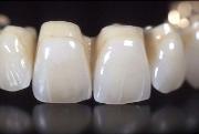 Отзывы о пластмассовых коронках на передних зубах