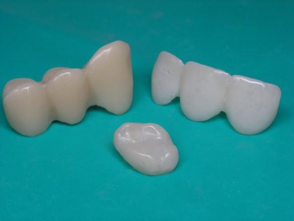 Пластмассовые коронки на передние зубы фото
