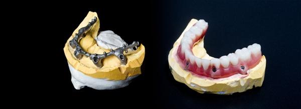 Стоимость покрывного зубного протеза