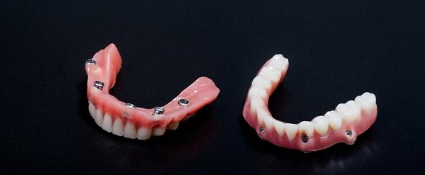 Покрывной зубной протез цены