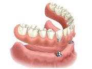 Фото покрывных зубных протезов