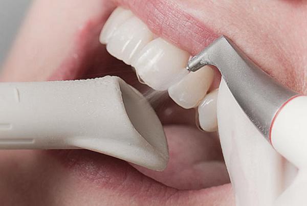 Чистка зубов аппаратом air flow