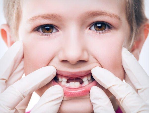 Протезирование детских молочных зубов