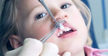 Разновидности коронок для протезирования молочных зубов