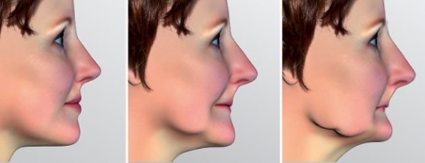 Протезирование зубов при полном отсутствии зубов цена