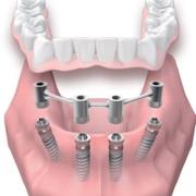 Устройство протезов на миниимплантах