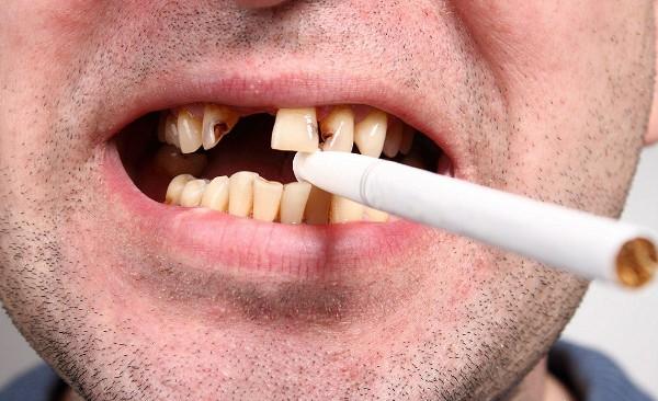 Разрушение эмали зубов симптомы