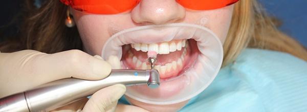 Шлифовка зубов до и после
