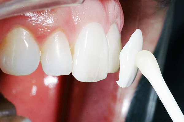 Стоимость люминира на 1 зуб
