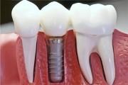 Имплантат зуба - сколько стоит