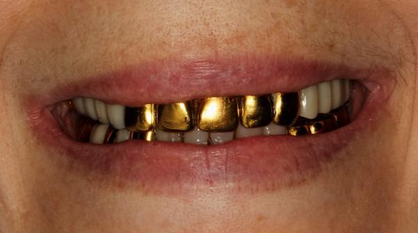 Где можно поставить золотую коронку на зуб