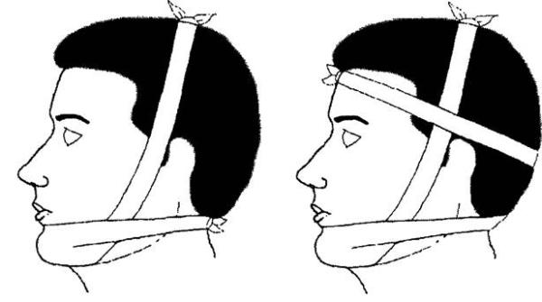Способы лечения перелома суставной головки нижней челюсти