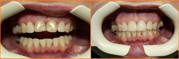 Установка световых пломб на передние зубы