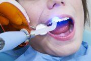 Изготовление световых пломб на передние зубы