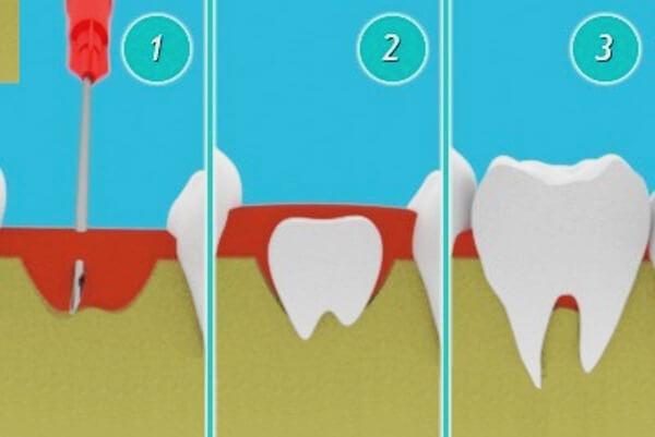 Выращивание новых зубов у человека новинки