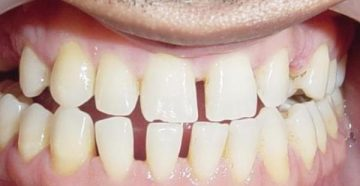 Причины возникновения тремы зубов и лечение