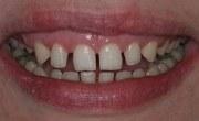 Что такое тремы зубов