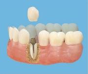 Установка вкладки в зуб под коронку