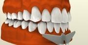 Необходимость вестибулопластики нижней челюсти