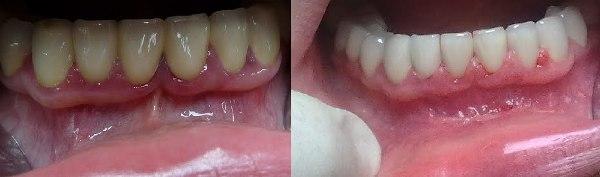 Вестибулопластика нижней челюсти лазером