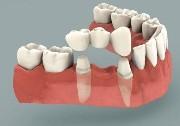 Основные отличия различных видов зубных мостов