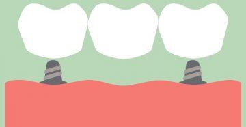Виды зубных мостов и их классификация