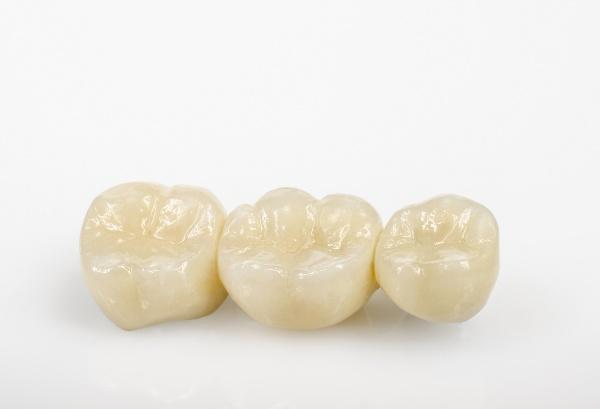 Виды зубных мостов