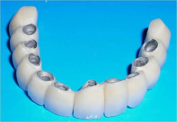 Виды зубных мостов и различия