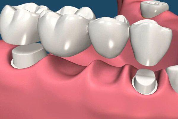 Виды зубных протезов и мостов