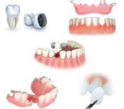 Какие бывают виды зубных протезов и мостов