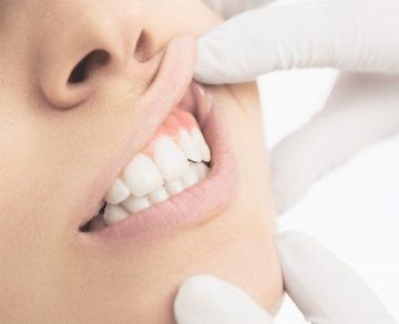 Пластмассовые коронки на передние зубы – отзывы специалистов и пациентов