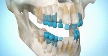 Внутренний и наружный способ выращивания зубов у человека