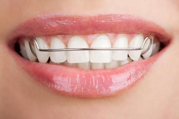 виниры пластины на зубы