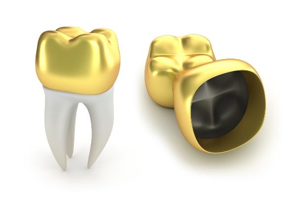 Как очистить золотые коронки от остатков зубов