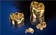 Особенности золотых коронок на зубы
