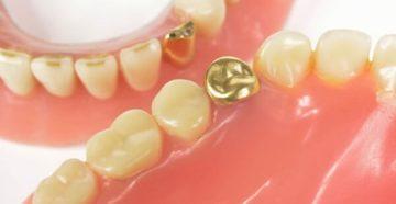 Разновидности золотых коронок на зубы и цена установки