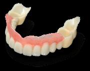 Особенности зубного протеза Сэндвич
