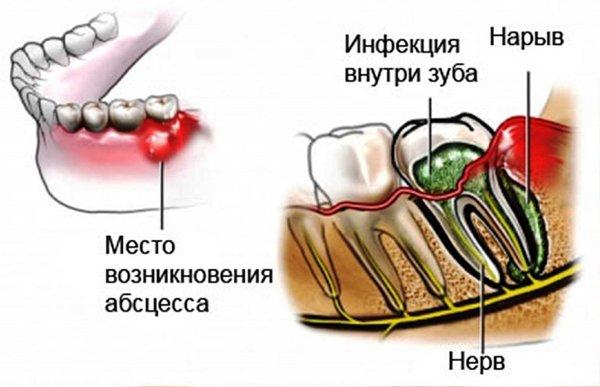 Гнойный абсцесс зуба симптомы фото