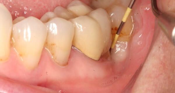 Абсцесс десны зуба лечение антибиотиками