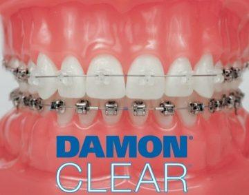 Самолигирующие керамические брекеты Damon Clear