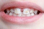 Что такое гипоплазия эмали зубов