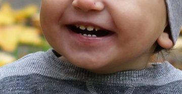 Тактика лечения гипоплазии эмали зубов у детей