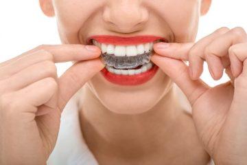 Силиконовые капы для выравнивания зубов – особенности лечения детей и взрослых