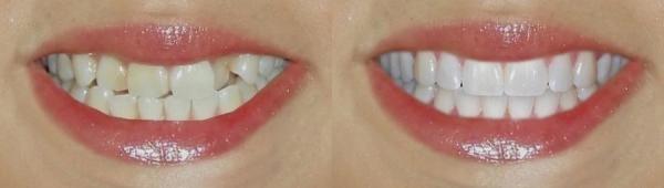 Капы для выравнивания зубов цена