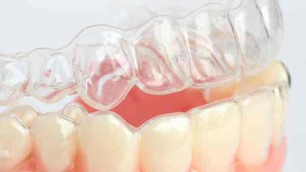 Силиконовые капы для выравнивания зубов стоимость