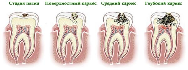 Лечение осложненного кариеса молочных зубов видео