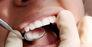 Домашние и стоматологические методы лечения катарального гингивита