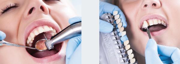 Выравнивание зубов винирами цена
